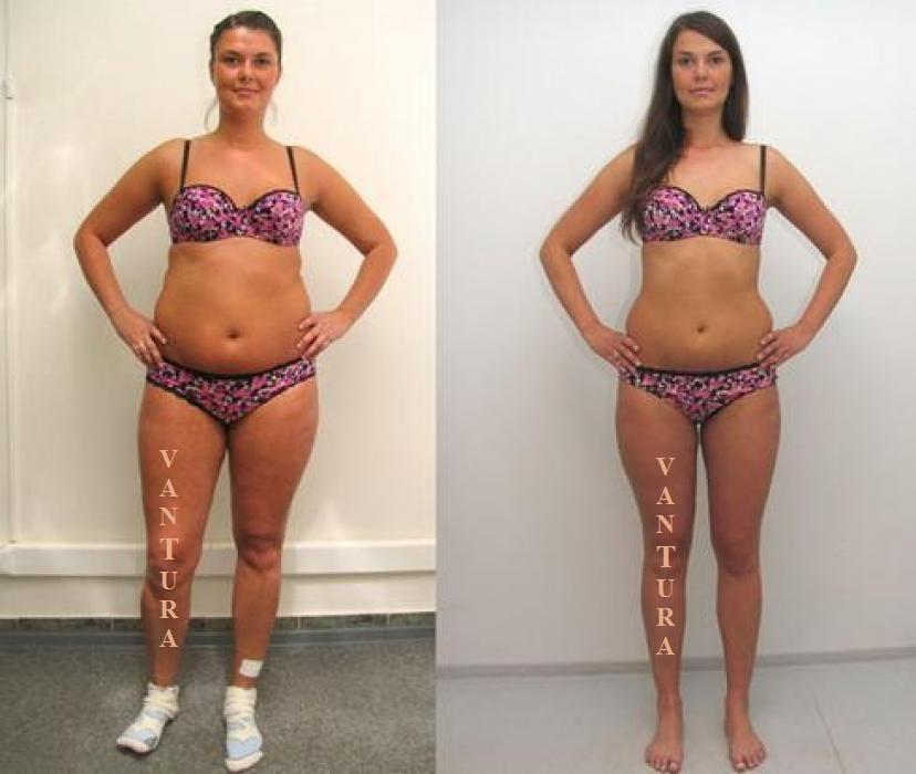 Как быстро убрать жир с живота и подтянуть его
